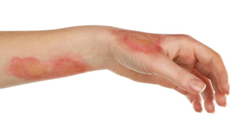Показание к применению - инфицированные раны