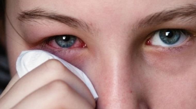 Препарат применяют лечении глазных болезней