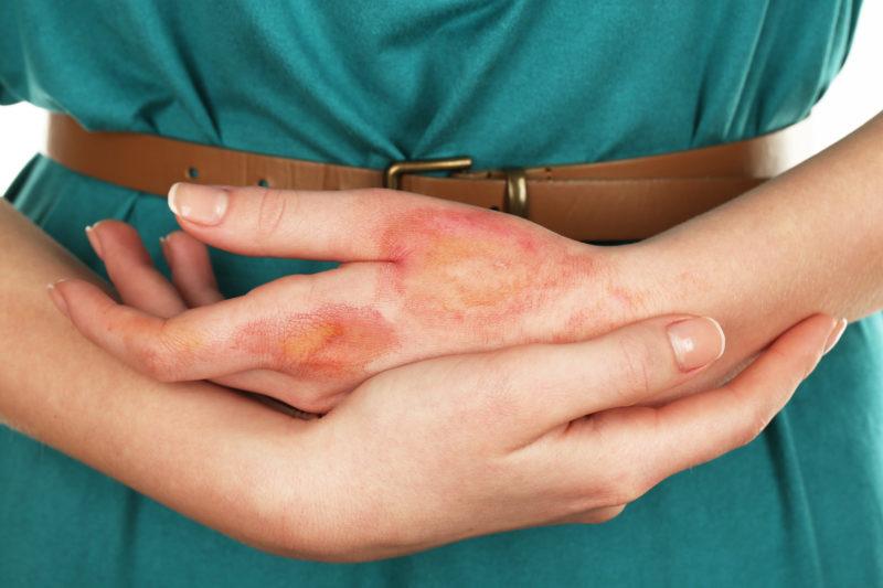 Препарат применяют в терапии инфицированных ран