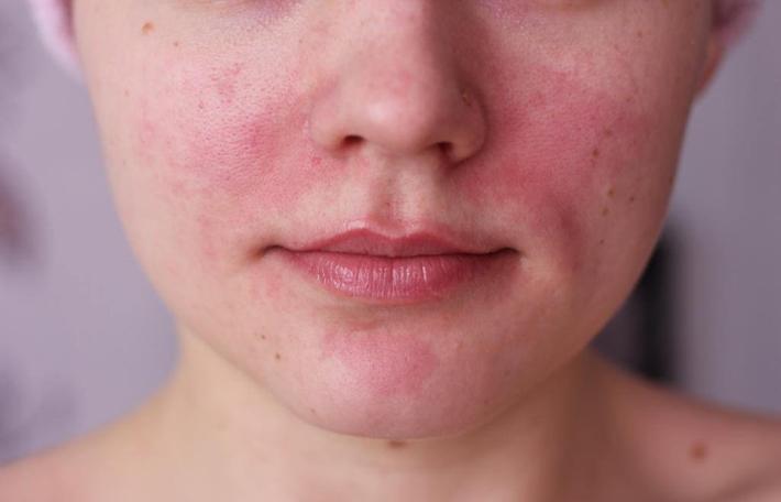 Покраснение и зуд - аллергическая реакция на лекарство