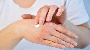 Лекарство аккуратно наносят на пораженные участки кожи