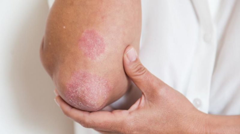 Препарат применяют в терапии воспалительных кожных болезней