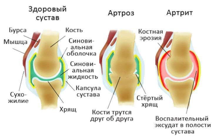 Показание к применению - суставные патологии