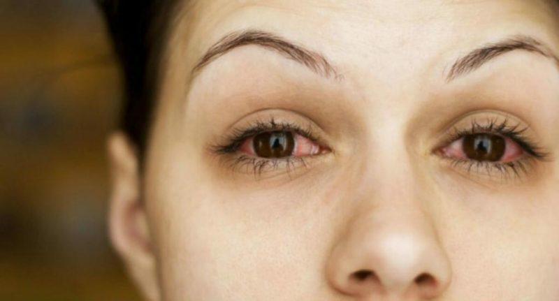 Препарат применяют в терапии болезней глаз, вызванных герпесвирусами