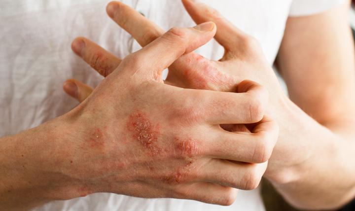 Препарат применяют в лечении болезней кожи, осложненных инфекцией