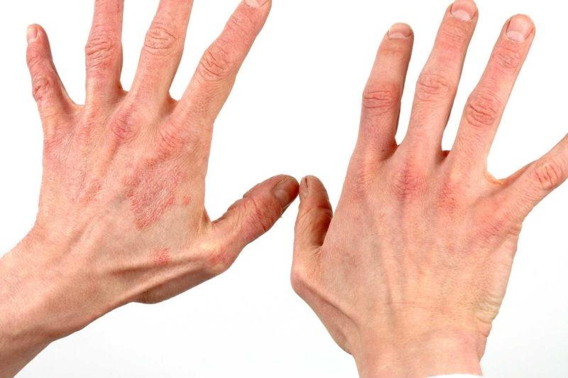 Средство применяют для лечения воспалительных болезней кожи