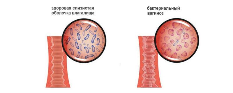 Показание к применению - вагиноз