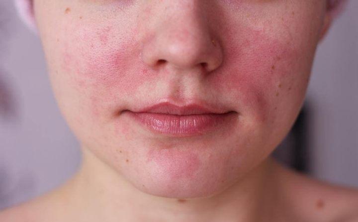 Кожный зуд и покраснения - побочное действие препарата