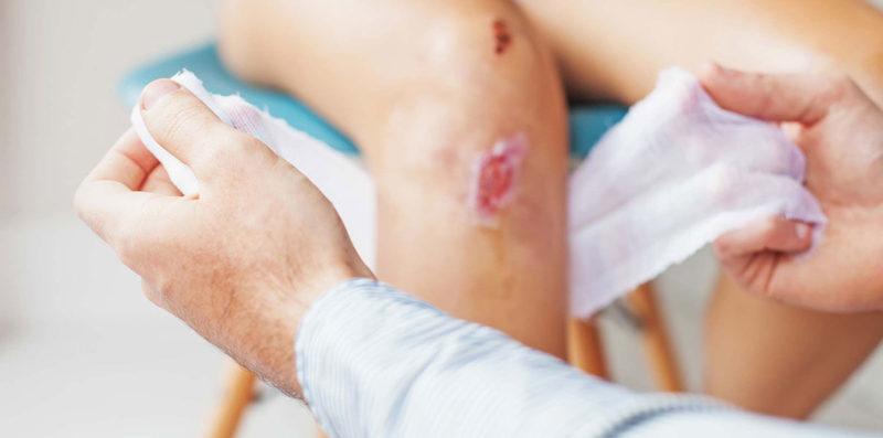 Средство применяют в терапии ран