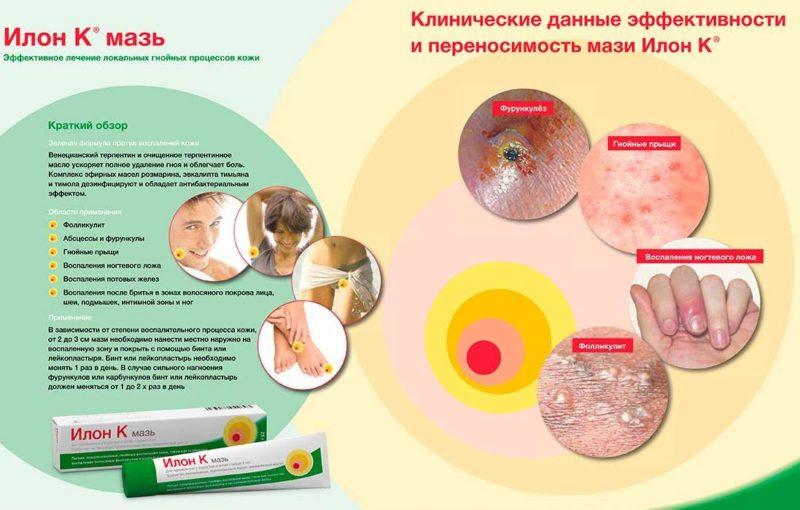 Препарат проявляет антибактериальный эффект