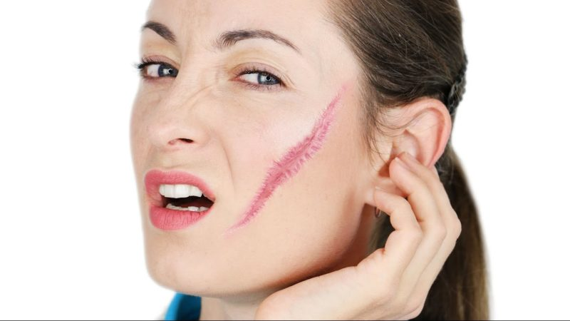 Препарат применяют в терапии кожных порезов, ожогов, ссадин