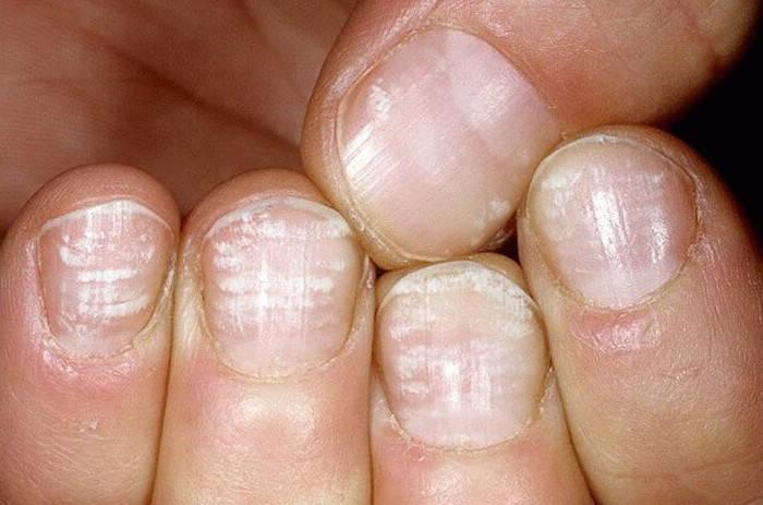 Миконазол против дрожжевых грибков на ногтях
