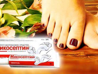 Мазь Микосептин делает ноги красивыми и здоровыми, защищая их от грибка