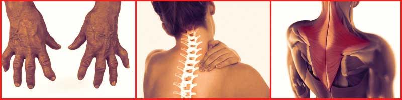 Применение Наятокс при мышечных болях и суставных