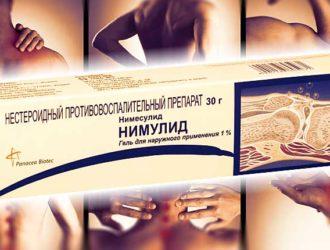 Противовоспалительное Нимулид