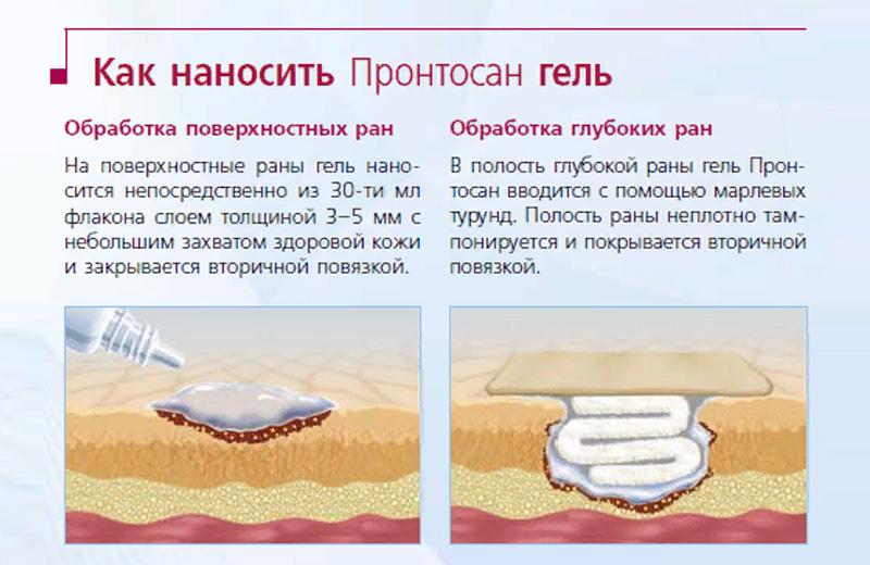 Инструкция по применению геля Пронтосан