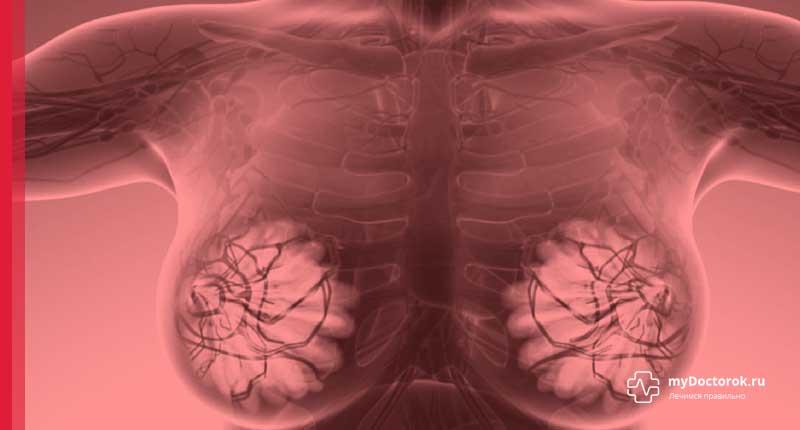 Молочные железы с мастопатией