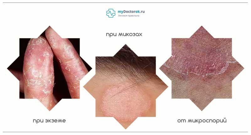Три заболевания кожи
