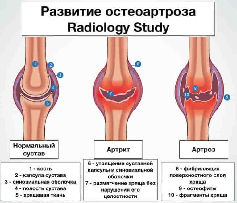 Артрозные заболевания суставов