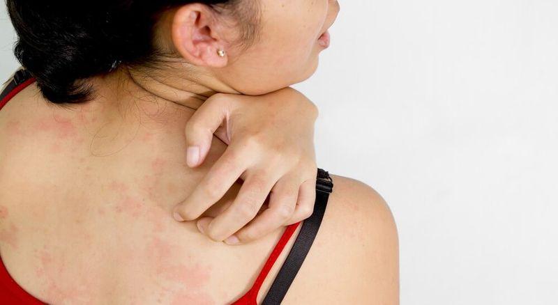 Мазь быстро снимает неприятные ощущения при аллергии
