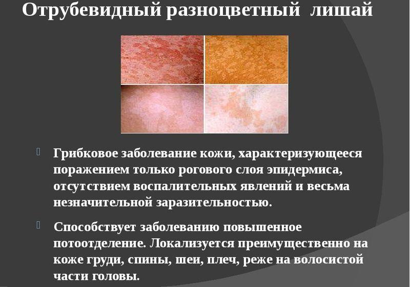 Разноцветный лишай - основные характеристики заболевания
