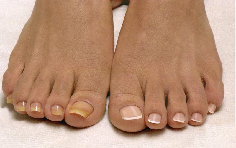 Крем не назначают для лечения ногтевого грибка