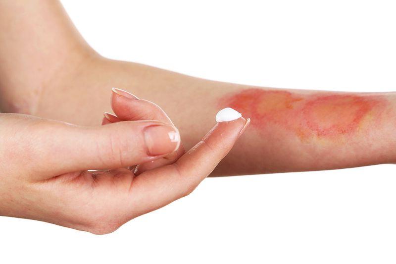 Крем помогает снять воспаление и боль в случае ожога