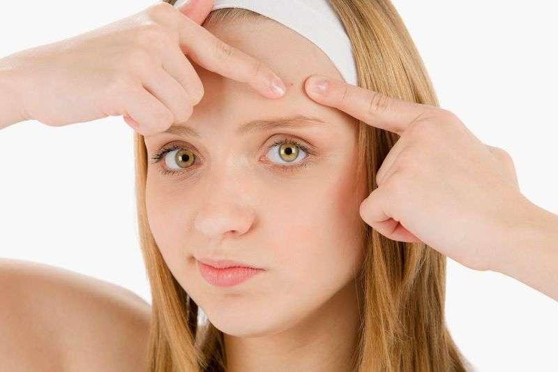 Мазь упокаивает кожу при акне, помогает предотвратить появление шрамов