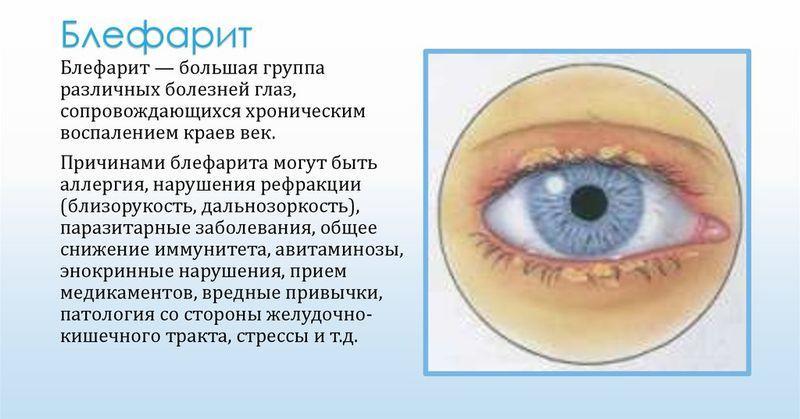 Блефарит - одно из показаний к применению