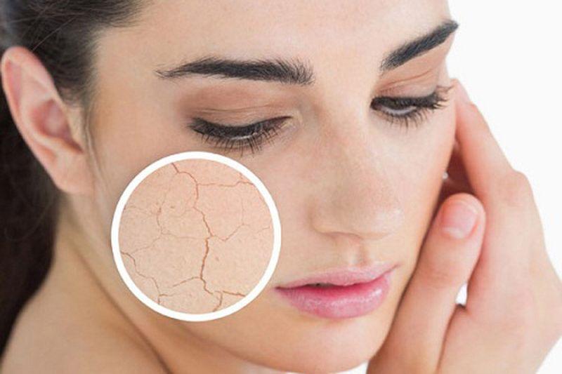 Препарат эффективно смягчает и успокаивает сухую и воспаленную кожу