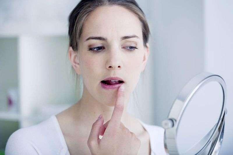 Крем нужно применять сразу при появлении симмтомов герпеса