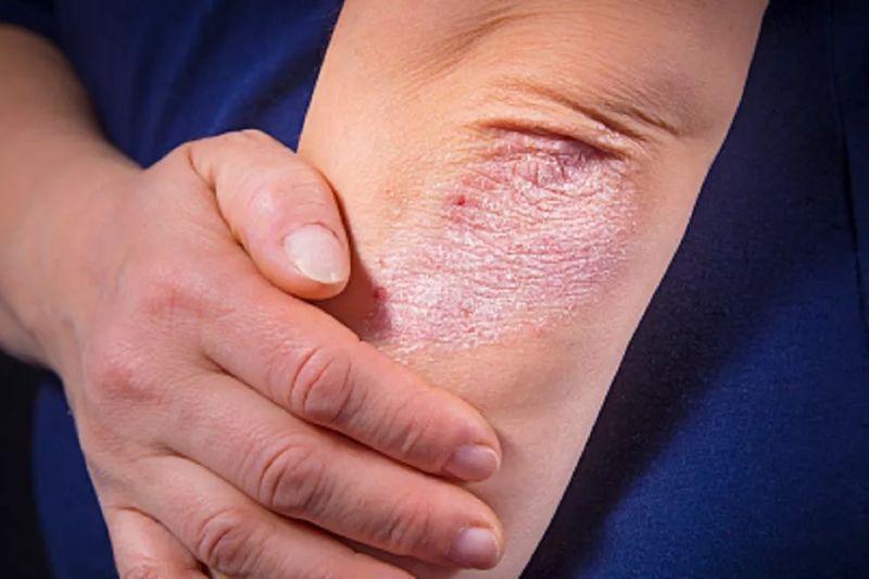 Средство эффективно в лечении псориаза