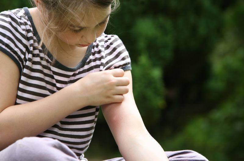 Инсектная аллергия - показание к применению