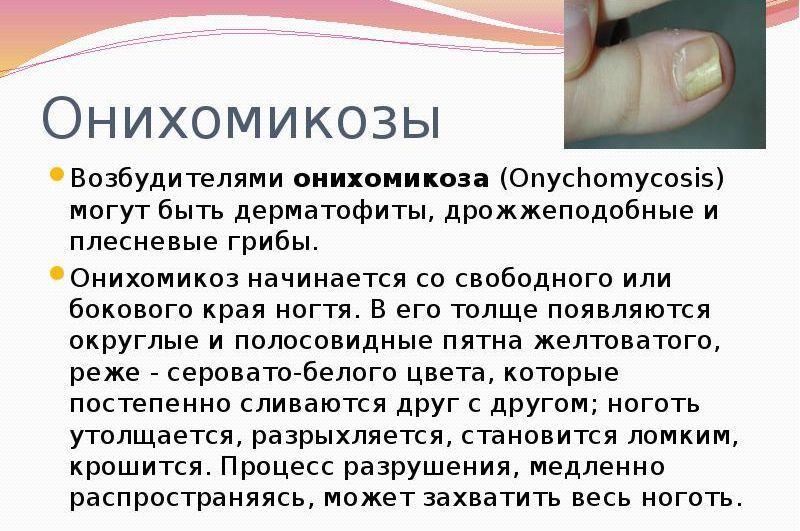Онихомикоз (ногтевой грибок)