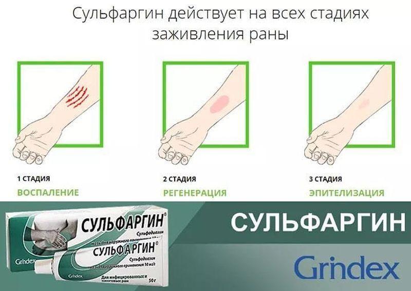 Сульфаргин - эффективное заживляющее средство