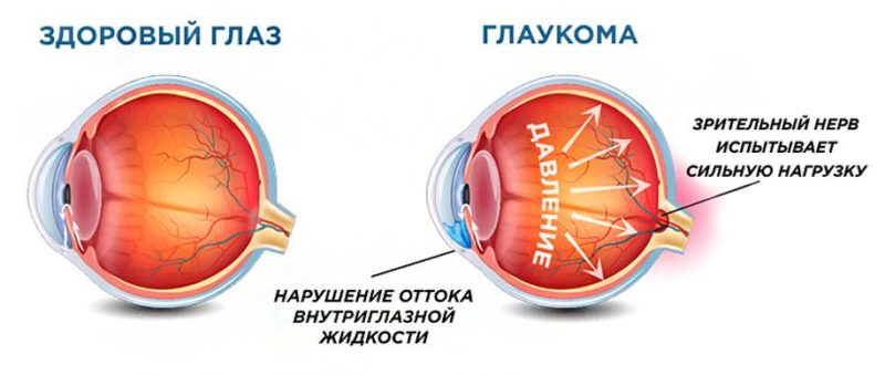 Описание симптомов глаукомы