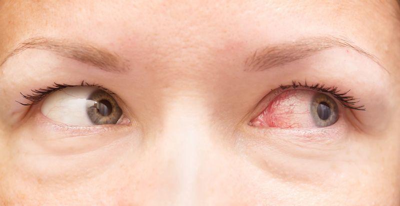 Препарат обладает ярко выраженным гипотензивным действием