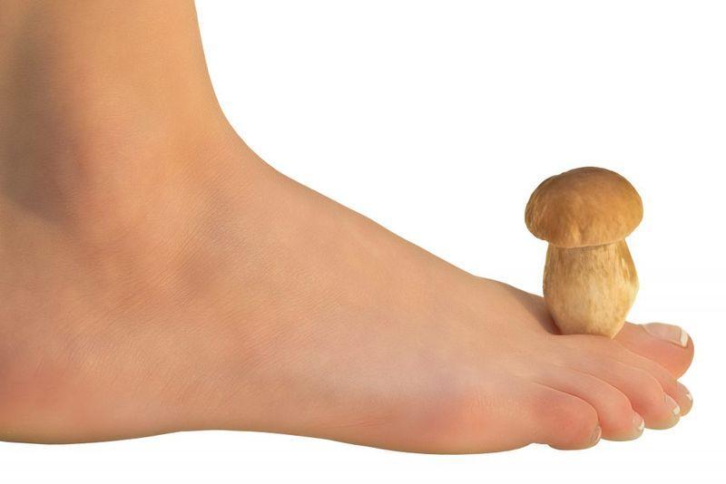 Мазь от грибка на ногах: недорогие, но эффективные препараты против микоза кожи и ногтей, принцип выбора, механизм действия, побочные эффекты, народная медицина