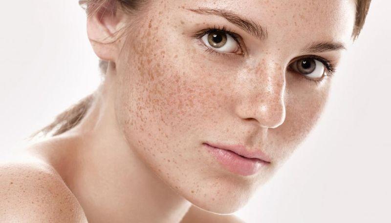 Веснушки - это нарушение пигментации кожи