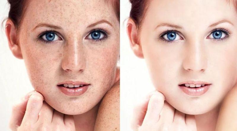 Клирвин против пигментных пятен на лице