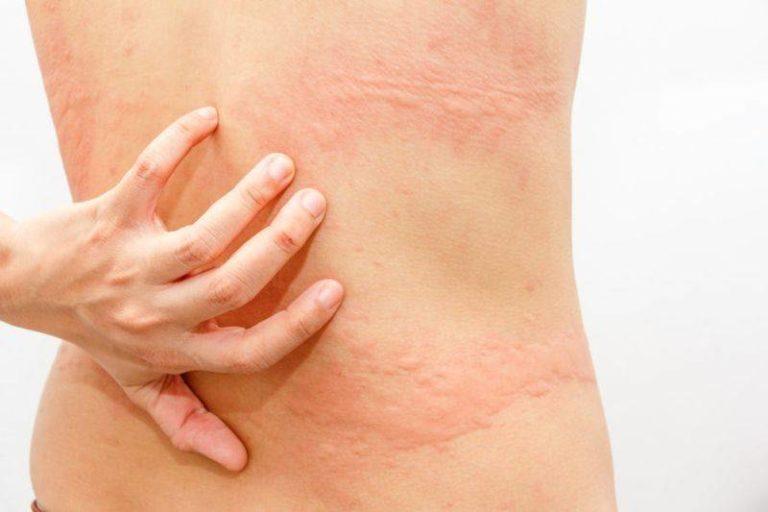 Диета когда есть аллергическая сыпь