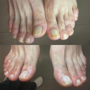 грибок ногтя до/после